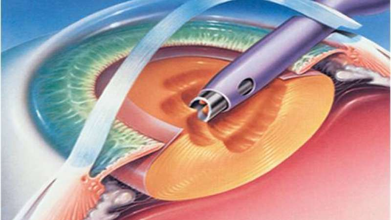 Phacoemulsification systems gaining popularity